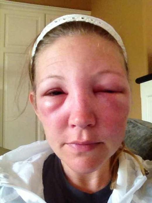 как проявляется аллергия на теле фото