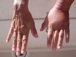 Отекшая рука после укуса
