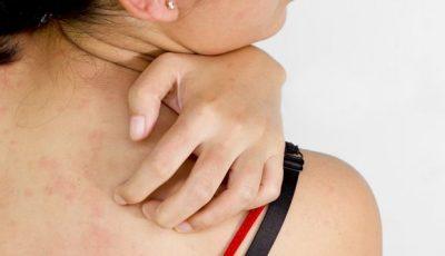 Потница или аллергия - как отличить заболевания у детей и взрослых