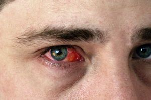 Конъюнктивит на глазах мужчины