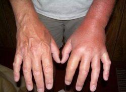 Отекшая рука после укуса осы