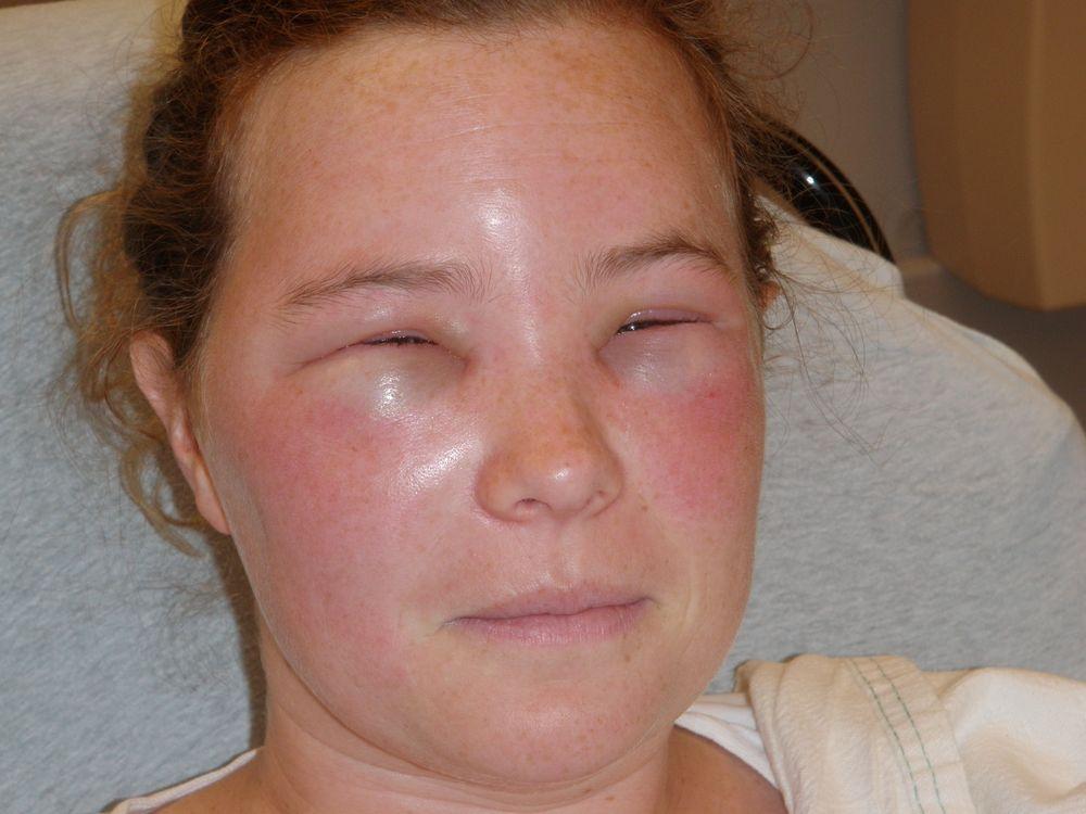 аллергия после укуса