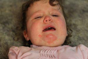 Аллергия на абрикос у девочки