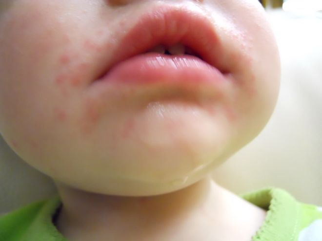 Фото высыпаний от клубники у детей