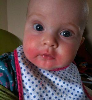 Аллергия на помидоры на щеках