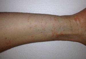 Аллергия на розы - кожная реакция