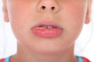 Синдром оральной аллергии у девочки