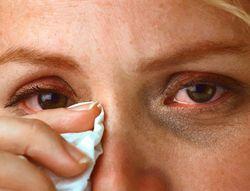 Глазные симптомы аллергии