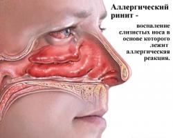 Графика: аллергический ринит