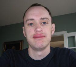 Оральная аллергия - отек губы