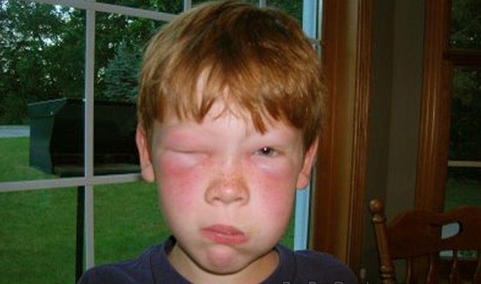 аллергия квинке