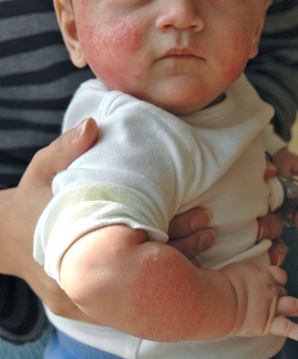 аллергия при беременности сыпь