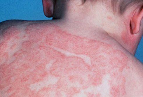 фото атопический дерматит у грудничка
