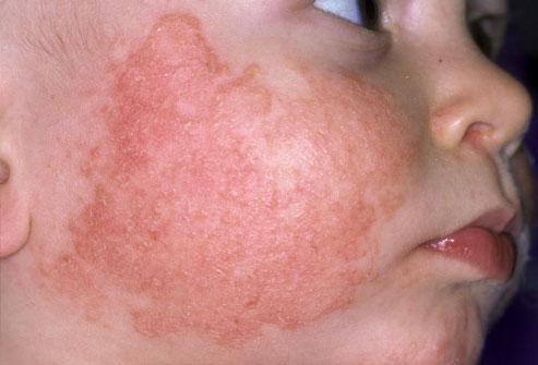 Атопический дерматит на щеке