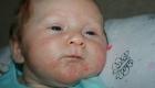 Как в месяц ребенку вылечить аллергию