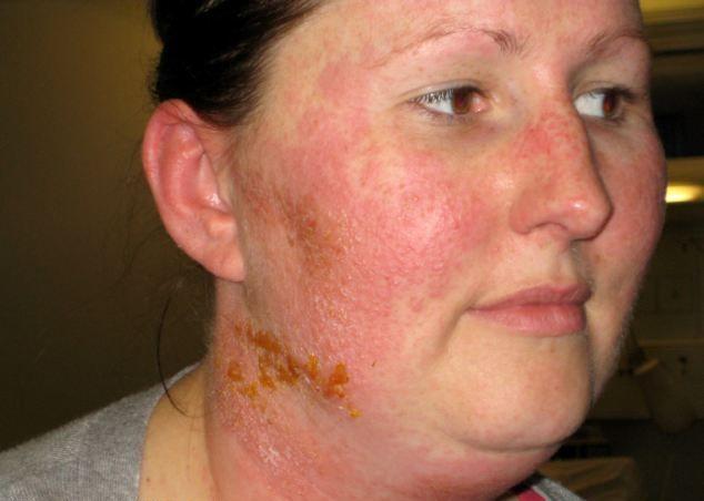 Аллергия на лице лечение от косметики