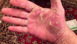 Аллергия на крапиву