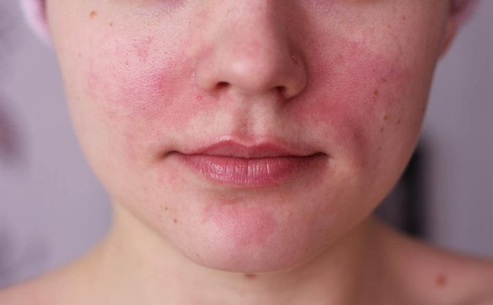 Аллергические высыпания на лице у взрослых и детей: лечение, мази и фото
