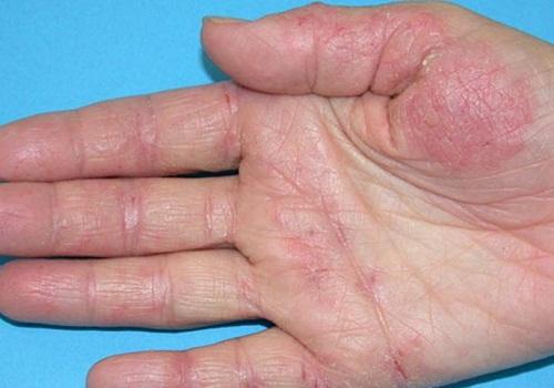 Онихомикоз ногтей лечение в домашних условиях фото