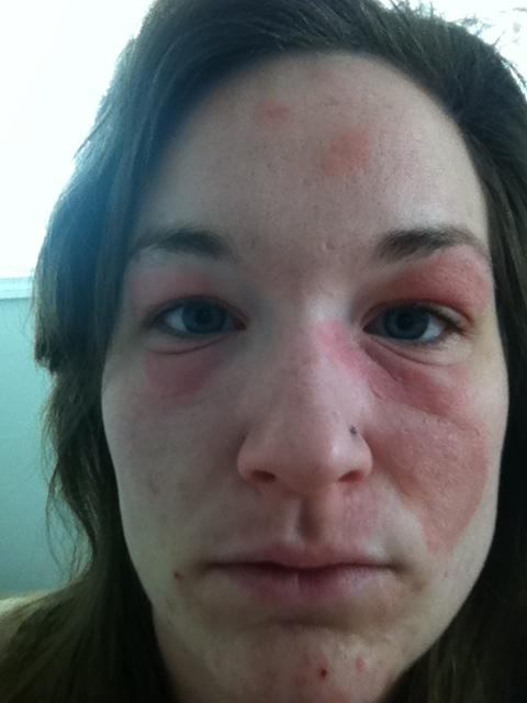 Photos facial edema due to allergic reaction young nude teen