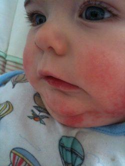 Проявления экземы на щеках