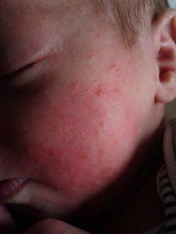 Сыпь на лице у грудничка