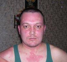 Почему кожа краснеет после алкоголя
