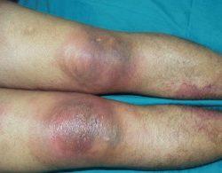 Изображение - Сыпь в области коленных суставов Allergiya-na-diklofenak-250x195