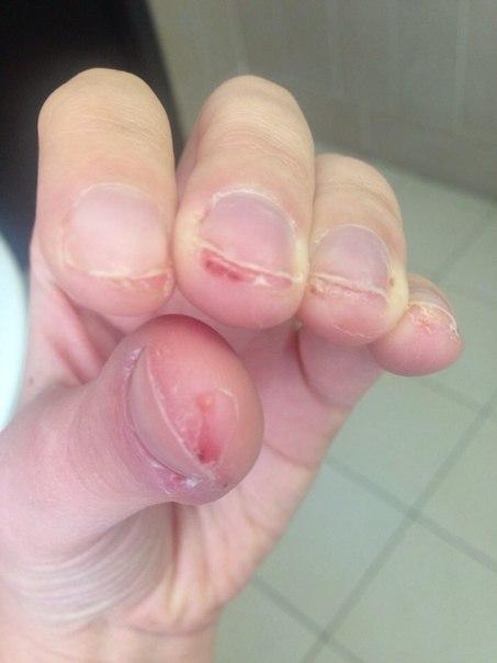 Фото аллергии после наращивания ногтей