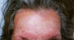 Аллеригя на краску для волос