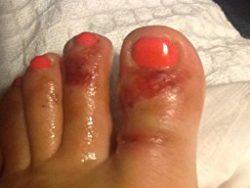 Аллергия на гель лак на ногах