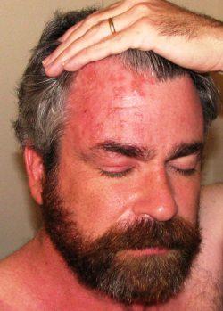 Аллергия на стевию