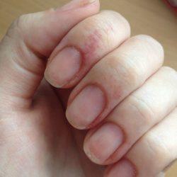 Небольшая аллергия на пальцах