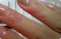 Облезает кожа на пальцах