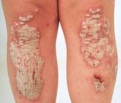 внутренняя аллергия фото