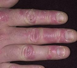 После гель лака чешутся пальцы