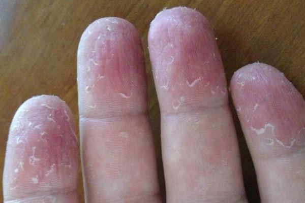 аллергия на мимозу как лечить