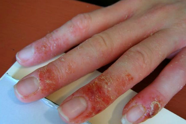 сильная аллергия на помидоры