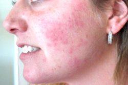 Аллергия на лице красными пятнами