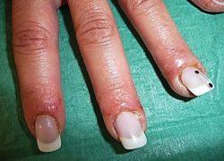Аллергияческая реакция на пальцах