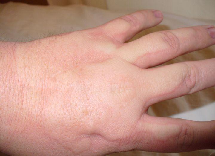 Аллергия на холод - симптомы и лечение у ребенка и взрослого