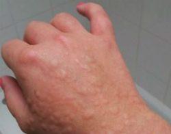 Проявление холодовой аллергии на руке