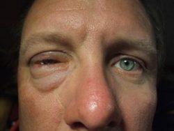 Аллергия на морских свинок