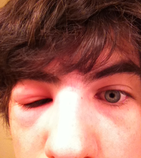 аллергия на апельсины на лице