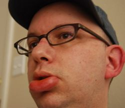 Отек губы как проявление оральной аллергии на фрукт