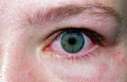 Аллергический конъюнктивит от лука