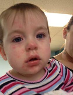 Аллергическая реакция на киви у ребенка проявляется сыпью на лице