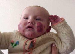 Токсидермия у ребенка