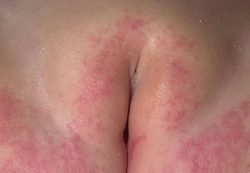 Пеленочный дерматит у ребенка