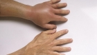 Аллергия на укус осы отекла рука